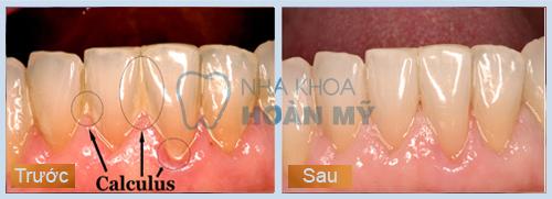 Lấy cao răng mất bao nhiêu tiền và bao lâu thì xong?