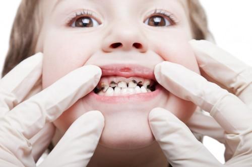 Những thông tin cần biết về bệnh sâu răng ở trẻ em