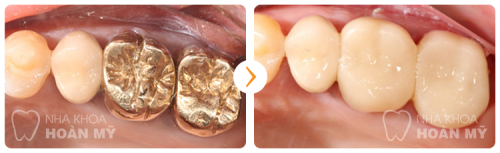 Những thông tin cần biết về bệnh sâu răng ở trẻ em 10