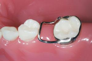 Những thông tin cần biết về bệnh sâu răng ở trẻ em 6