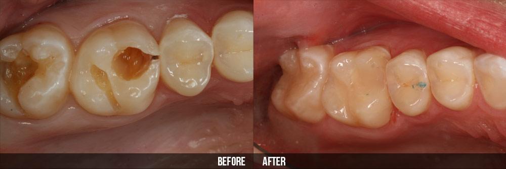 Cẩm nang chữa đau răng sưng lợi của bạn