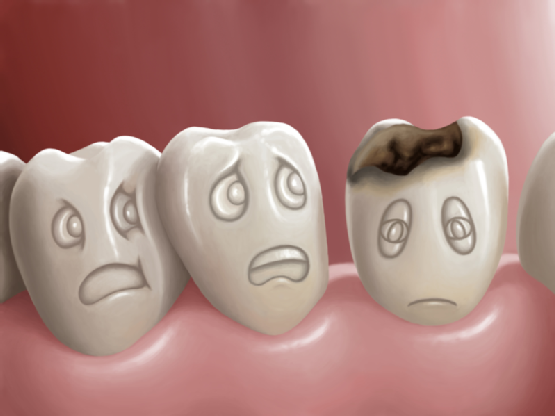 Tất cả thông tin về tình trạng sâu răng hàm bạn CẦN BIẾT