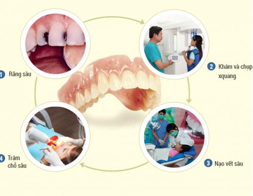 Chữa dứt điểm sâu răng, đau nhức răng sau 7 ngày