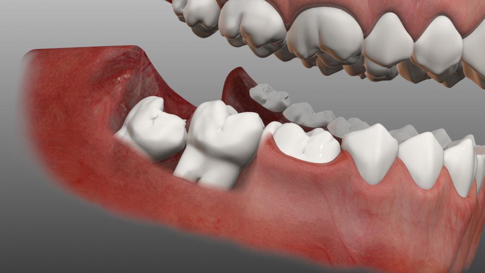 Răng khôn bao giờ mọc? Giải đáp CHI TIẾT nhất từ chuyên gia 1