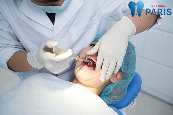 Nhổ răng số 8 ở đâu tốt