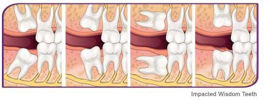 Mọc răng khôn trong thời gian bao lâu sẽ chấm dứt cơn đau? 1
