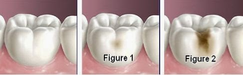 4 Nguyên nhân sâu răng và cách điều trị sâu răng hiệu quả VĨNH VIỄN 3