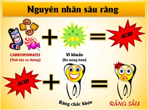 Nguyên nhân sâu răng và cách chữa sâu răng hiệu quả nhất