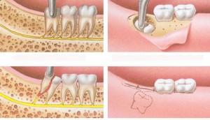 Răng khôn có mọc ở hàm trên không?