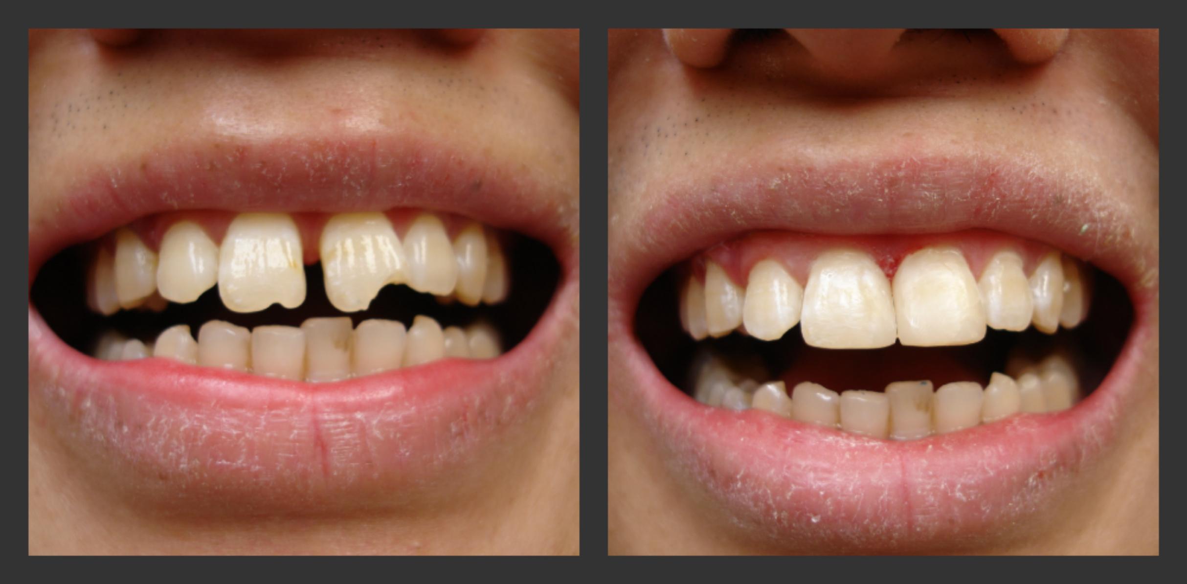 Trám răng thẩm mỹ ở đâu tốt và giá ưu đãi nhất? 3