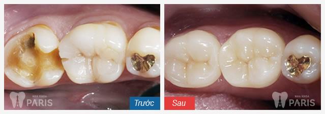Hàn trám răng thẩm mỹ Laser Tech - tái tạo răng xấu hoàn hảo 6