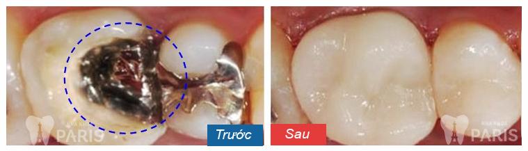 Làm sao để hết đau răng sâu nhanh nhất? 2