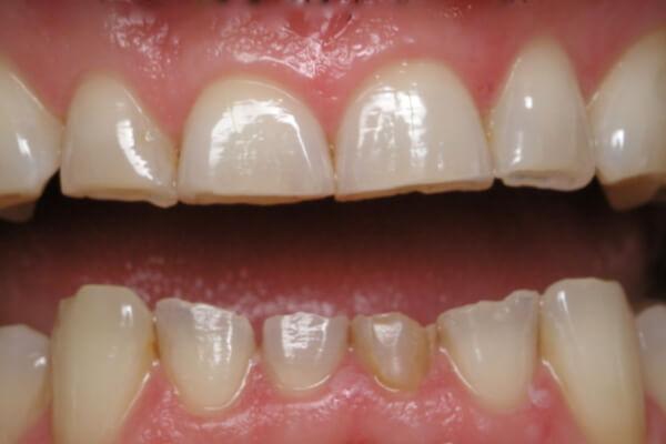 Làm sao chữa bệnh nghiến răng khi ngủ VĨNH VIỄN nhanh chóng? 1