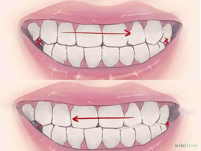 Răng nhạy cảm là gì - Nguyên nhân và các triệu chứng phân biệt 3
