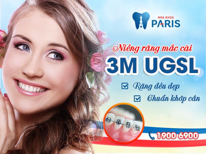 Niềng răng mắc cài 3M UGSL: Chỉnh nha nhẹ nhàng hiệu quả trọn đời