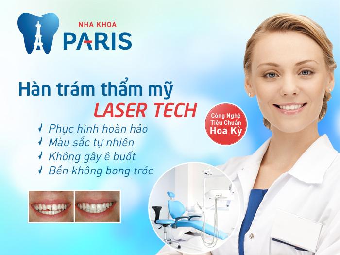 Trám răng bao nhiêu tiền để có chất lượng tốt? 2