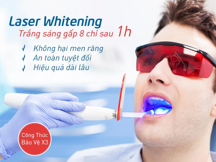 4 thắc mắc khi tẩy trắng răng bằng laser nên biết 1