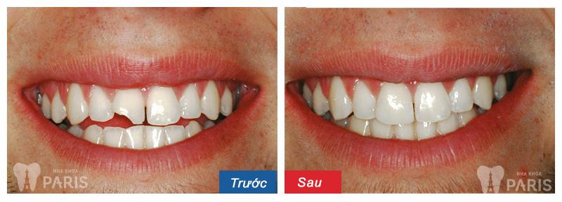 Hàn trám răng thẩm mỹ Laser Tech - tái tạo răng xấu hoàn hảo 5