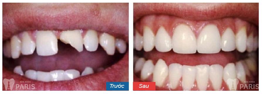 Hàn trám răng thẩm mỹ Laser Tech - tái tạo răng xấu hoàn hảo 7