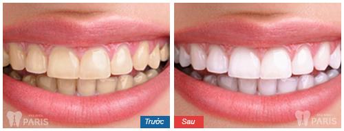 WhiteMax - cách làm trắng răng hiệu quả số 1 Hoa Kỳ 4