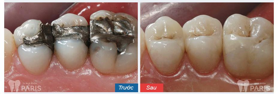 Hàn trám răng thẩm mỹ Laser Tech - tái tạo răng xấu hoàn hảo 4