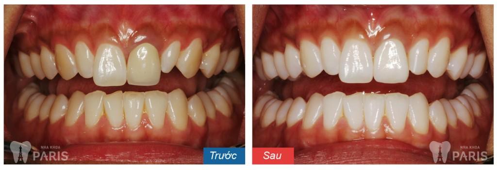 WhiteMax - cách làm trắng răng hiệu quả số 1 Hoa Kỳ 7