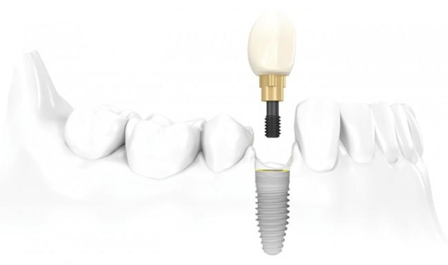 Răng sâu nặng có nên nhổ bỏ hay không? [Chuyên gia tư vấn] 3