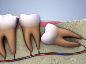 Răng khôn mọc ngầm có nên nhổ, độ tuổi nào nhổ hợp lý?1