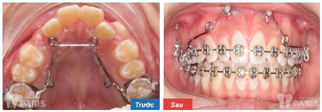 Niềng răng thẩm mỹ 3M UGSL - hiệu quả trọn đời cho hàm răng sai lệch 7