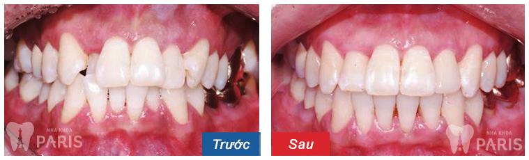 Niềng răng thẩm mỹ 3M UGSL - hiệu quả trọn đời cho hàm răng sai lệch 2