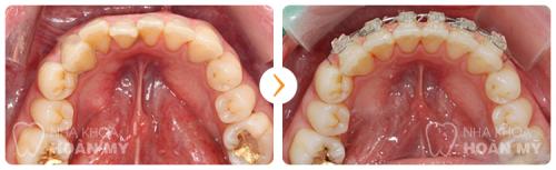 Kết hợp phẫu thuật hàm hô móm và niềng răng 3D Clear
