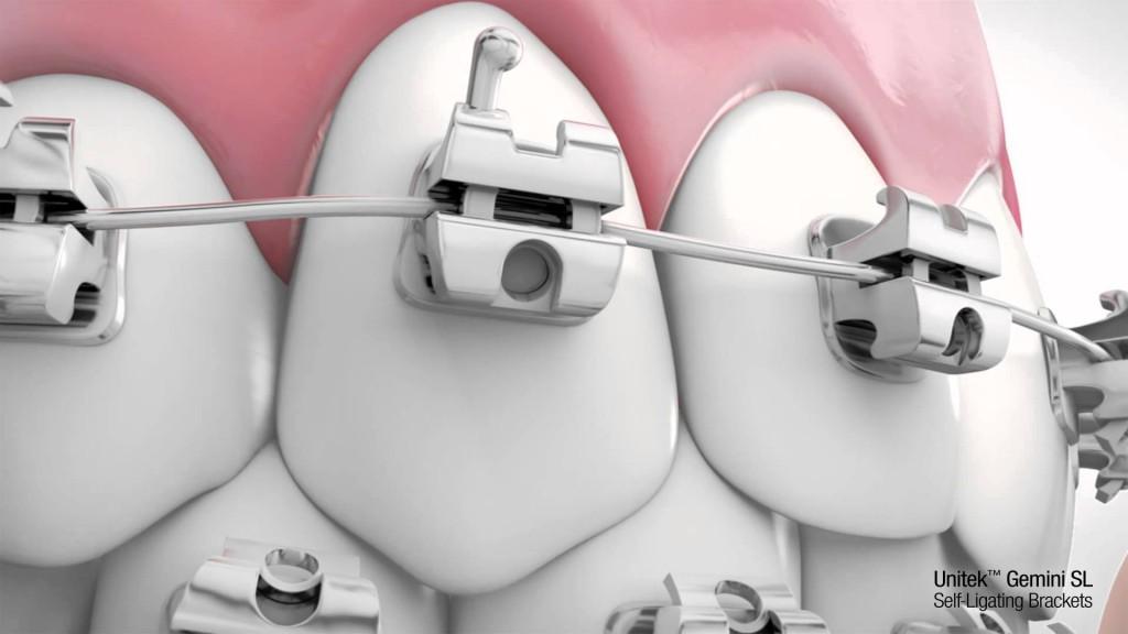 Mắc cài đóng vai trò quan trọng giúp bạn niềng răng móm hiệu quả