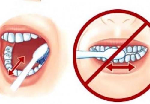 Răng bị ê buốt phải làm sao chữa khỏi trong 1 ngày 13