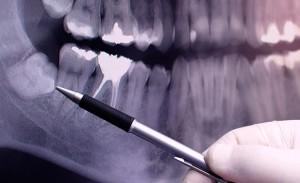 Răng khôn mọc ngầm có nên nhổ, độ tuổi nào nhổ hợp lý?2