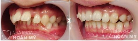 Răng hô có nên bọc sứ 11