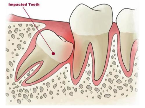 Răng khôn có nhổ được không nếu mọc ngầm 2