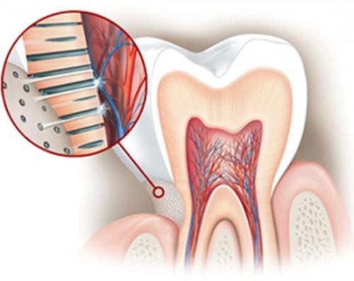 Răng nhạy cảm là gì - Nguyên nhân và các triệu chứng phân biệt 2