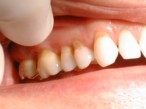 Răng nhạy cảm là gì - Nguyên nhân và các triệu chứng phân biệt 1