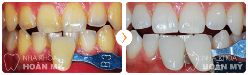 Tẩy trắng răng có làm răng yếu đi không 10