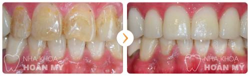 tẩy trắng răng mất bao lâu 11