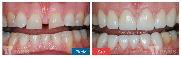 Hàn trám răng thẩm mỹ Laser Tech - tái tạo răng xấu hoàn hảo 3