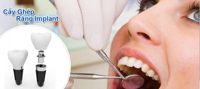 Trồng răng Implant có đau không? 1