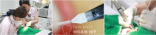 Trồng răng Implant có đau không 4
