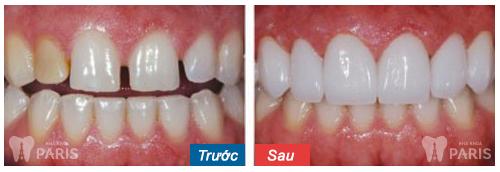 Răng sứ thẩm mỹ CT 5 chiều - Sức mạnh phục hình răng Hiệu Quả 5
