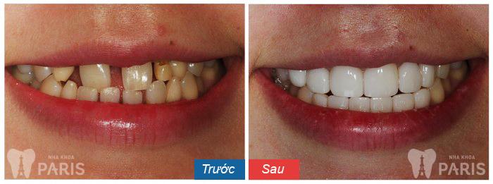 Răng sứ thẩm mỹ CT 5 chiều - Sức mạnh phục hình răng Hiệu Quả 6