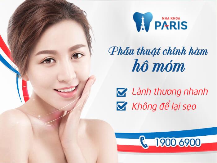 phẫu thuật hàm vẩu NK Paris