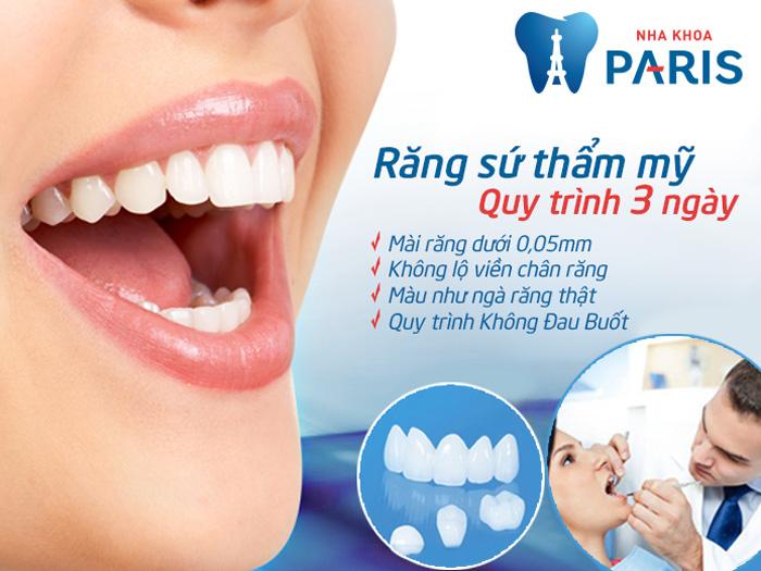 bọc mão răng sứ là gì