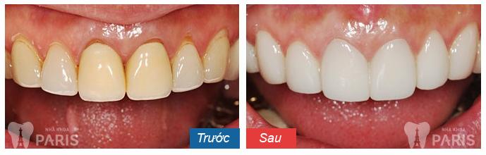 WhiteMax - cách làm trắng răng hiệu quả số 1 Hoa Kỳ 5