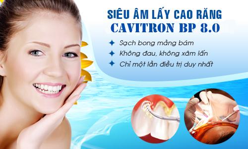 Cạo vôi răng thường xuyên tốt hay không?2