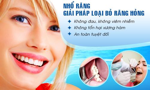 Răng khôn bị sâu có nên nhổ không?2